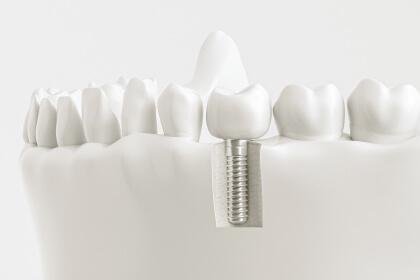 Implantologie- Zahnarztpraxis Dr. Tolk + Team in Kreuzau bei Düren